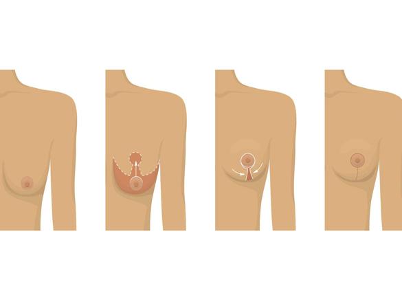 جراحة الثدي فی مشهد