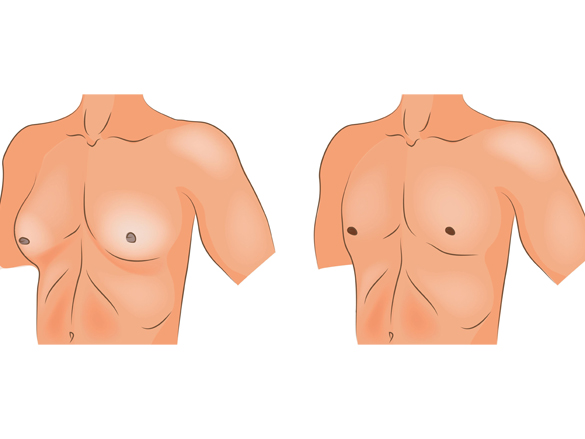 تصغير الثدي