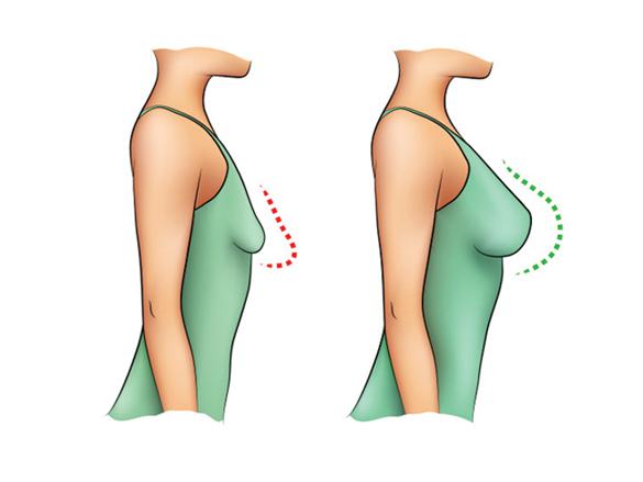 ماموپلاستی جراحی کوچک کردن سینه خانم ها